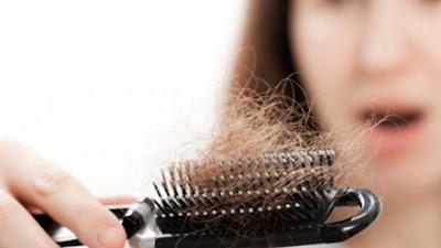ریزش مو زیاد